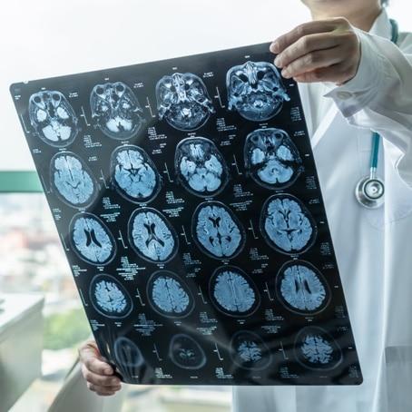 Brain Injury & Head Injury Cases